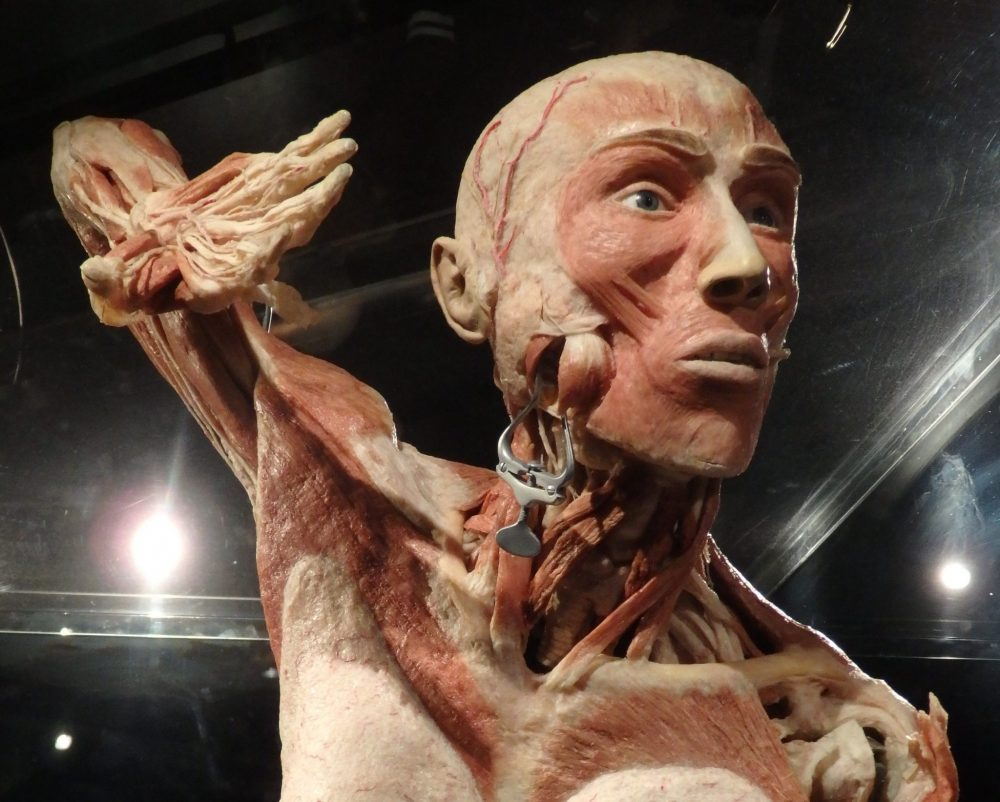 a plastinate: shown from the chest up, it is a male face. The facial features are normal, but the skin has otherwise been removed so veins show on the head, muscles and ligaments show in his arm, which is raised above his head as if he was swimming the crawl.